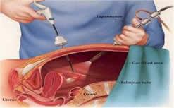 LAPAROSKOPI1 Operasi Laparoskopi pada kelainan kandungan